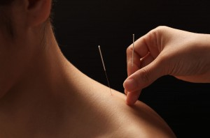 acupuncture-main