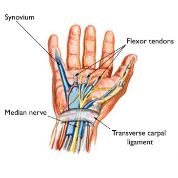 Treating Carpal Tunnel Syndrome with Acupuncture Balance Method